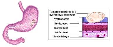 a gyomorrák diagnózisa